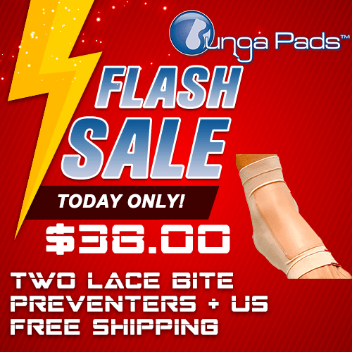 Flash Sale - Lace Bite Pads and Free Shipping